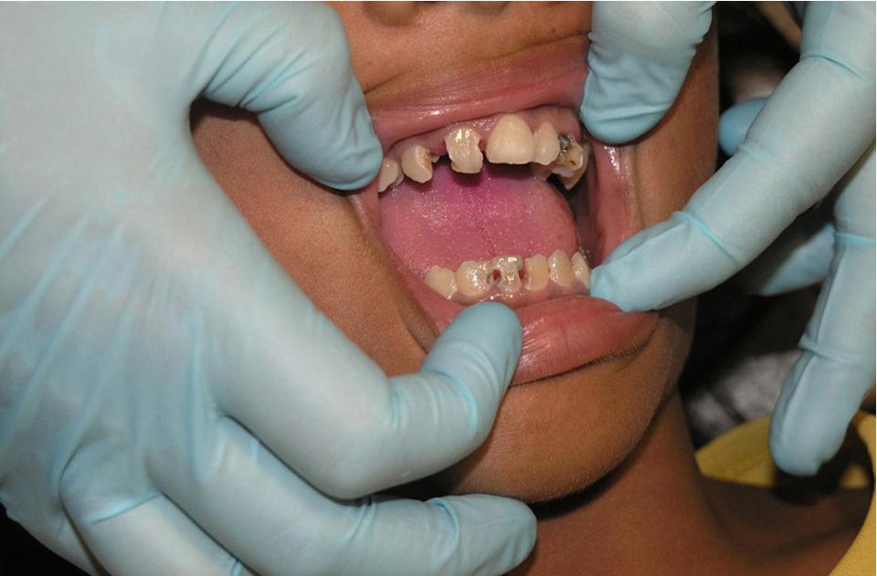 치아 관리